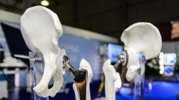 Крупнейшее российское производство имплантатов для травматологии запустили в Новосибирске